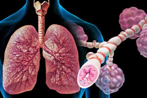 Подвижный образ жизни поможет вылечить астму