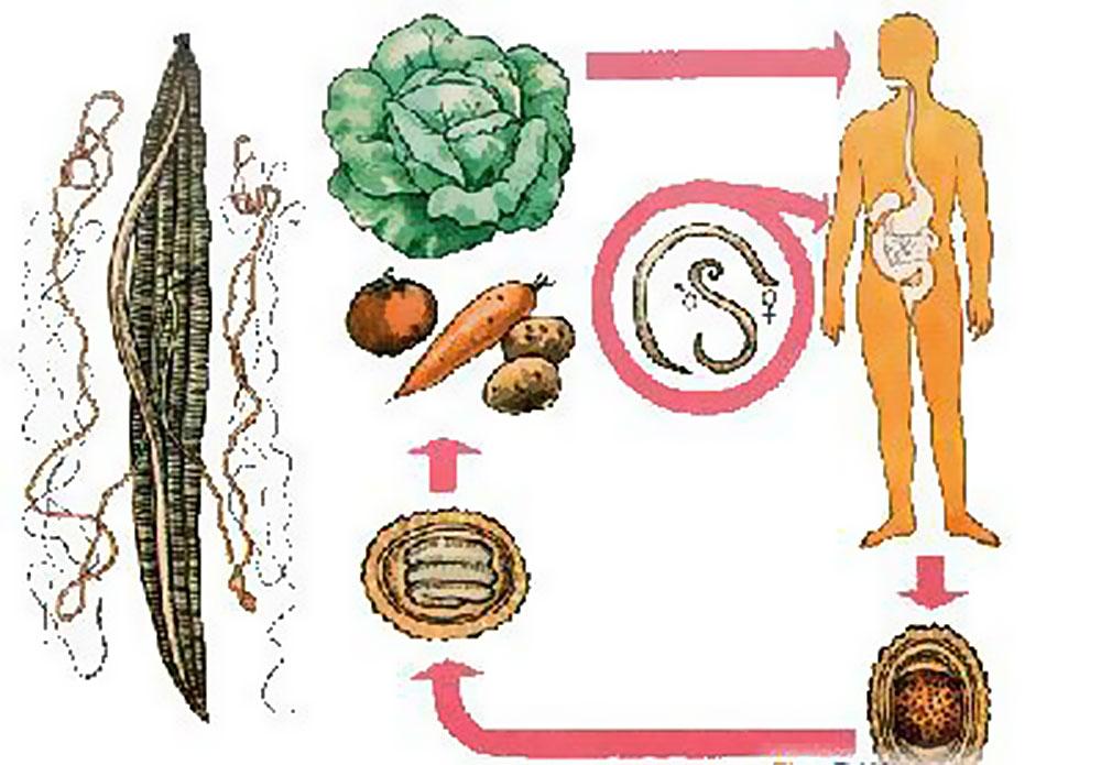 Гименолепидоз – инфекция, вызванная карликовым цепнем