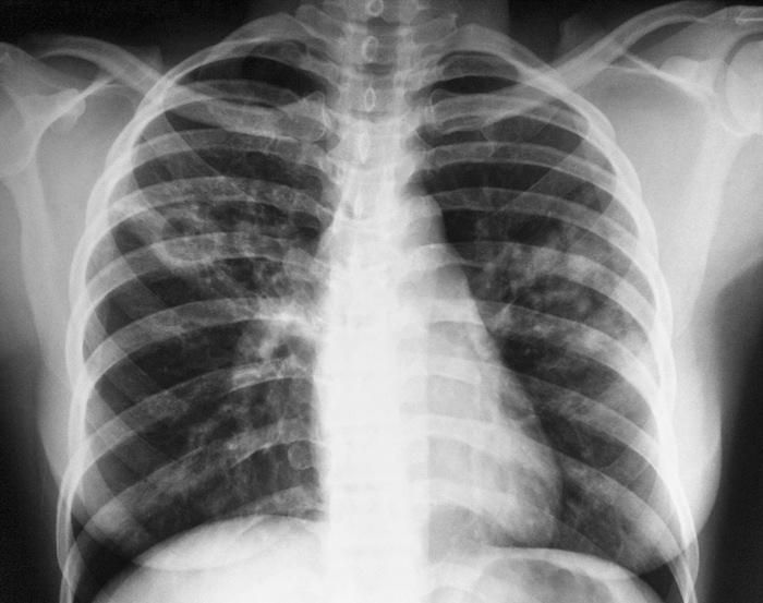Глина поможет вылечить туберкулез