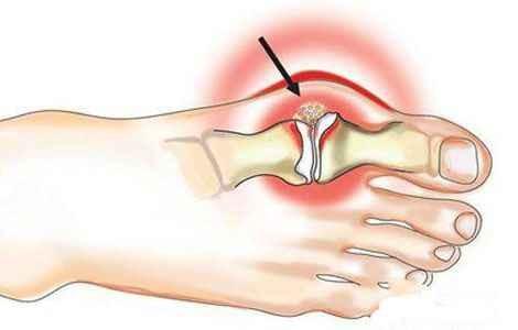 Как безболезненно вылечить косточку на ногах