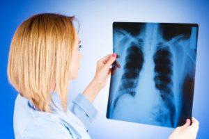 Туберкулез излечим, если захотеть