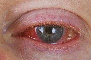 Макияж и темные очки сохранят глаза здоровыми