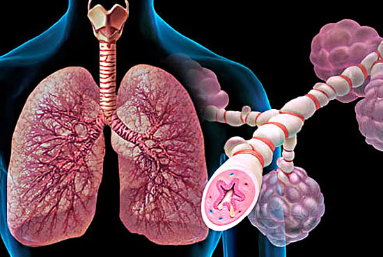 Бронхиальная астма и уличные выхлопные газы
