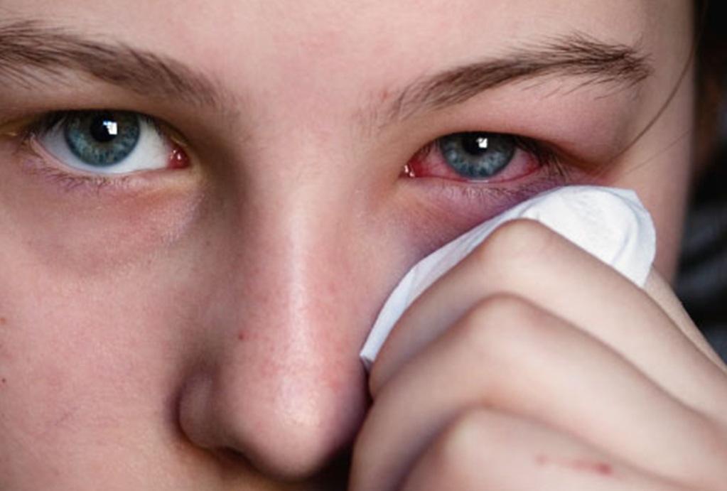Конъюнктивит может быть опасен