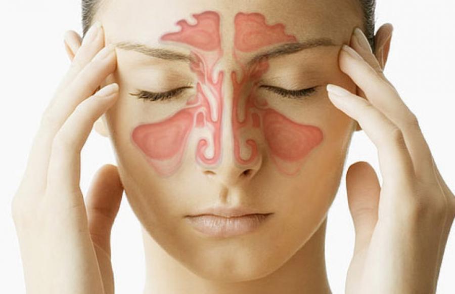 Принципы лечения острого синусита: поменьше антибиотиков