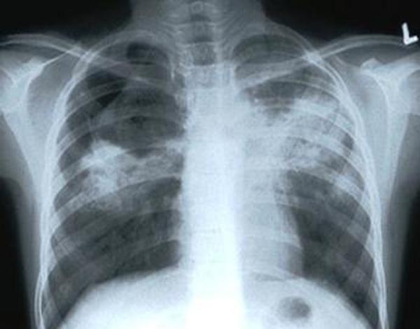 Можно ли вылечить туберкулез с помощью «африканского женьшеня»?..