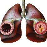 Американские ученые разработали новый комплексный подход для лечения астмы у детей и подростков