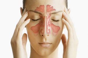 Синусит не нуждается в лечении антибиотиками