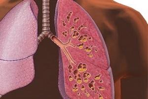 Разрабатывают альтернативное лечение инфекций при муковисцидозе