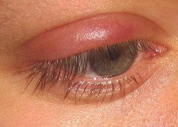Ячмень на глазу: причины, лечение