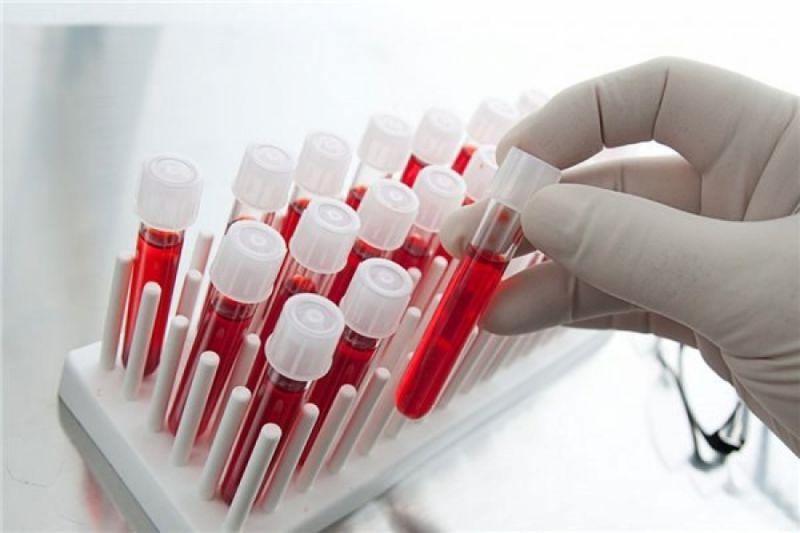 Ученые успешно испытали вакцину, убивающую вирус иммунодефицита