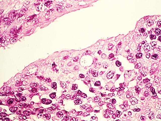 Хламидиоз способствует развитию рака