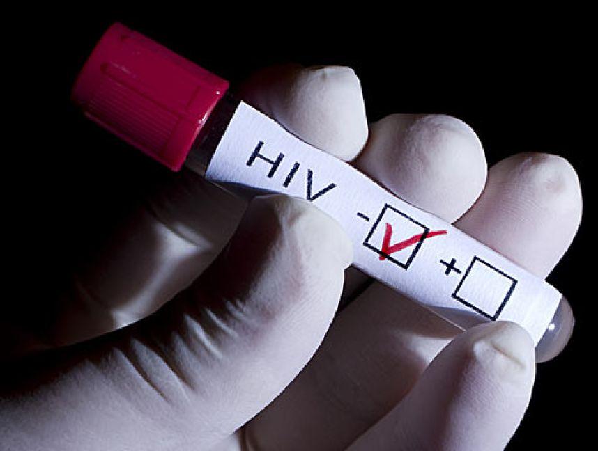 Критическая ситуация с ВИЧ наблюдается в десяти регионах РФ
