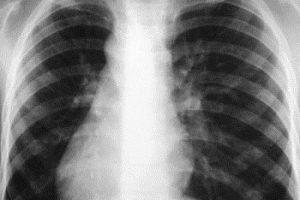 ВОЗ о туберкулезе: надо быть осторожнее