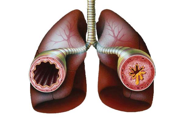 Избыточный вес ухудшает течение астмы