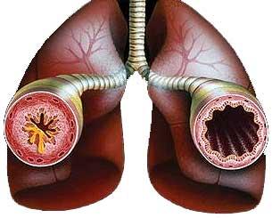 Свойства клеток иммунной системы определяют течение астмы