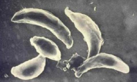 Токсоплазмоз и беременность