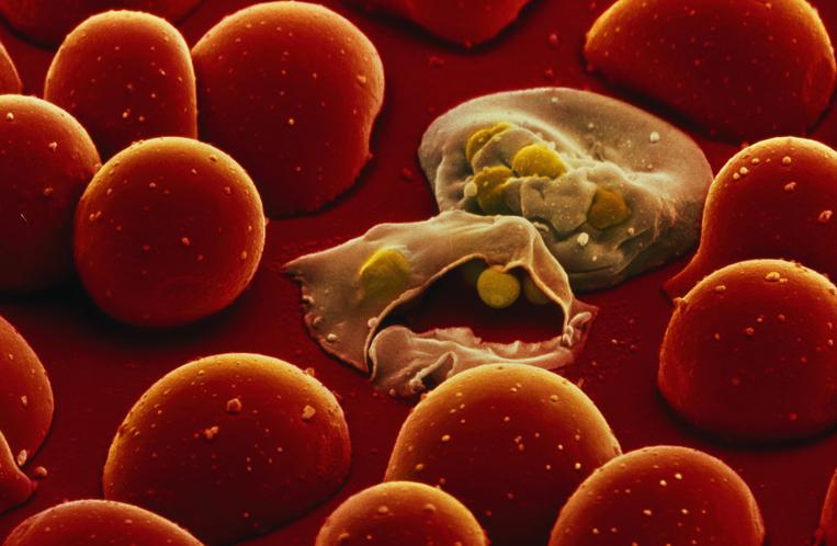 Вспышки малярии будут предсказывать синоптики