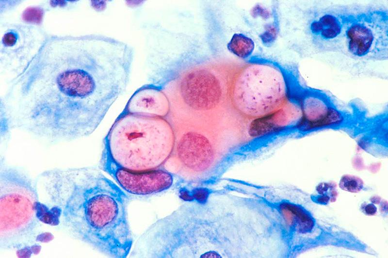 Ученые объяснили связь хламидиоза и рака шейки матки