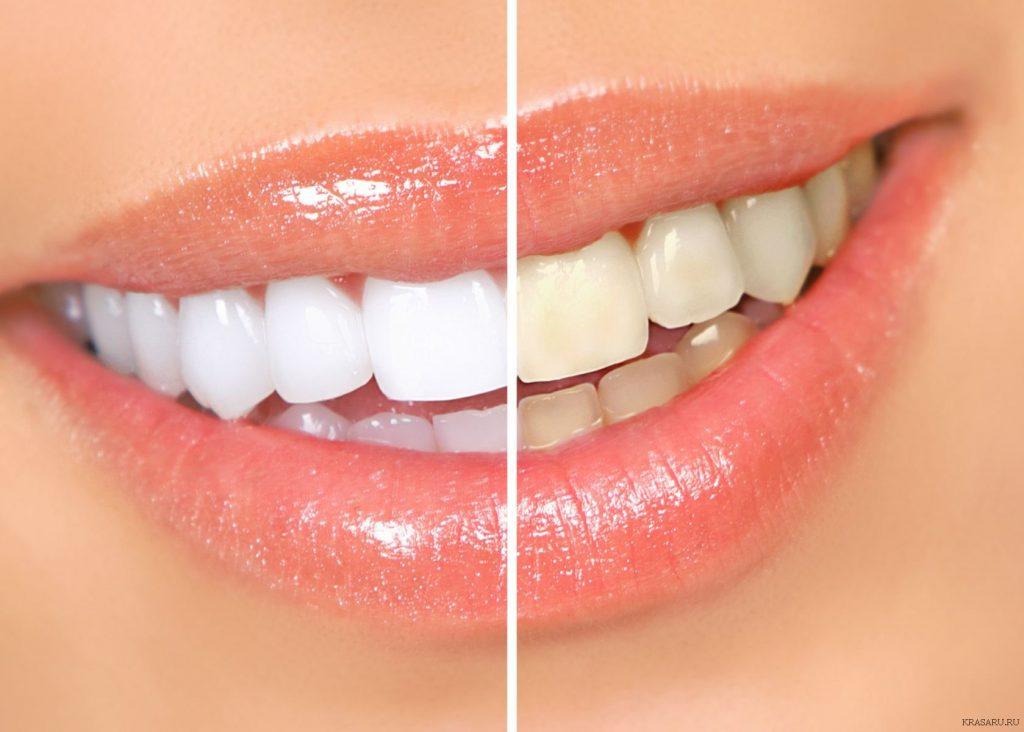 Почему нельзя отбеливать зубы в домашних условиях?
