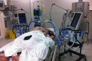 Искусственная вентиляция легких может вызывать воспаление
