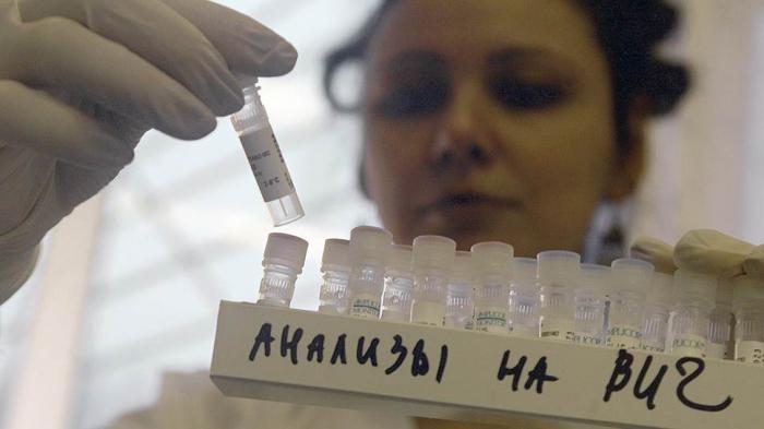 Правительство отвергло идею штрафов для ВИЧ-инфицированных