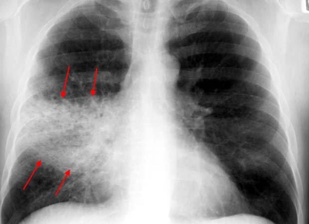 В Омске выросло количество пациентов с пневмонией
