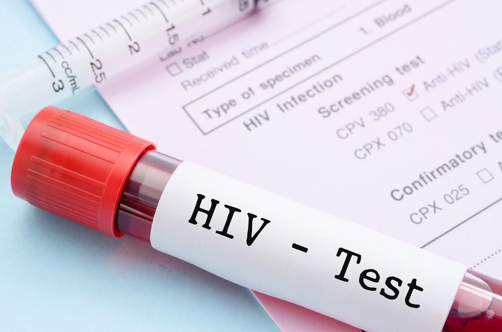 В России отказались от снятия запрета на въезд ВИЧ-инфицированных