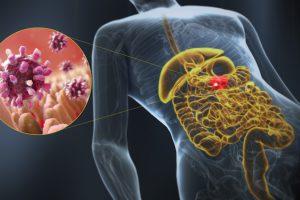 Продолжительный прием антисекреторных препаратов может повышать риск развития инфекционного гастроэнтерита