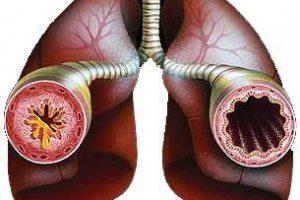 Лекарство от астмы создали на основе пылевых клещей