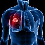 Ученые совершили прорыв в диагностике туберкулеза