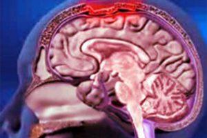 Ученые выявили гены, ответственные за возникновение менингита