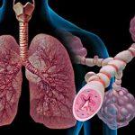 Пониженный уровень витамина D увеличивает риск возникновения более тяжелых приступов астмы