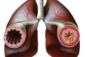 Стресс на работе способствует возникновению астмы