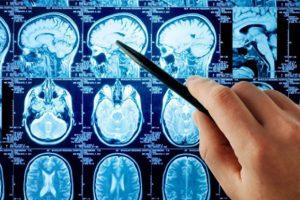 Гепатит B впервые связали с болезнью Паркинсона