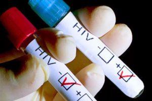 Ученые установили связь между ВИЧ и раком