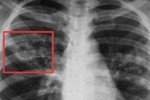 Препарат для лечения вирусных заболеваний может способствовать возникновению туберкулеза