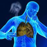 Курение снижает сопротивляемость легких к инфекциям
