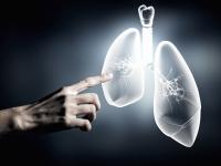Teva зарегистрировала в России биопрепарат для лечения астмы