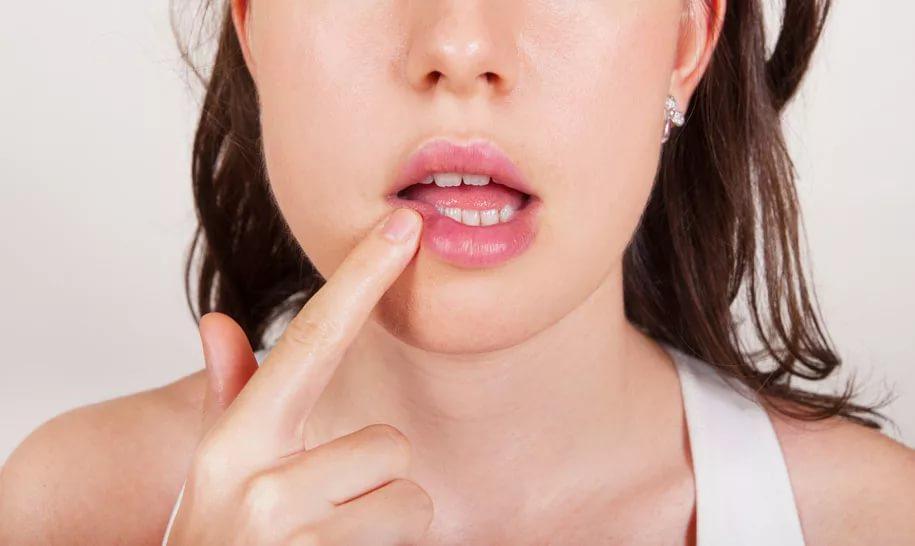 Досадная простуда на губах — герпес во всей красе