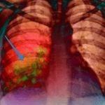 Воспаление легких: причины, симптомы и методы лечения