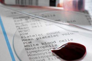 Ученые выяснили, как удалить ВИЧ из организма пациентов