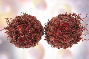 Почему иммунная система не препятствует раку