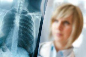 Ежегодное прохождение флюрографии поможет выявить туберкулез на ранних стадиях