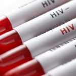 ВИЧ: как можно заразиться
