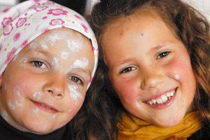 Ветрянка у детей: профилактика, симптомы и лечение