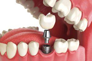 Протезирование зубов. Стоматология — это медицина, которая отвечает за Вашу красивую улыбку
