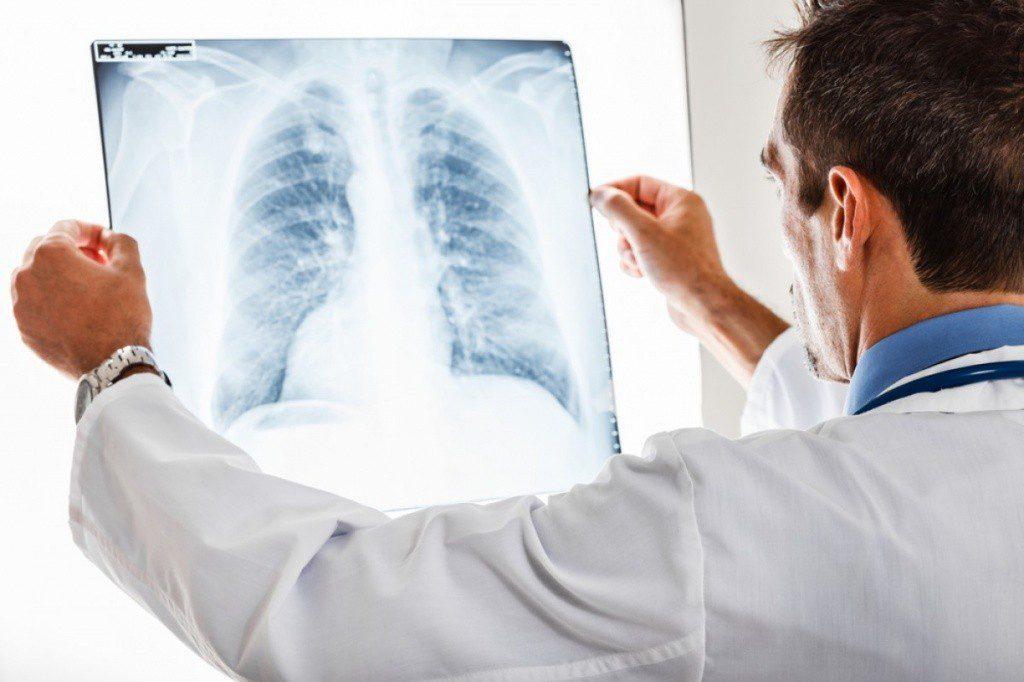 Симптомы скрытой пневмонии
