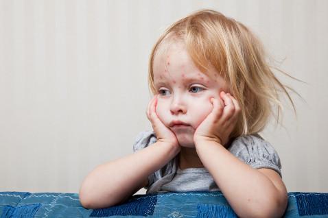 Ветряная оспа: симптомы и лечение
