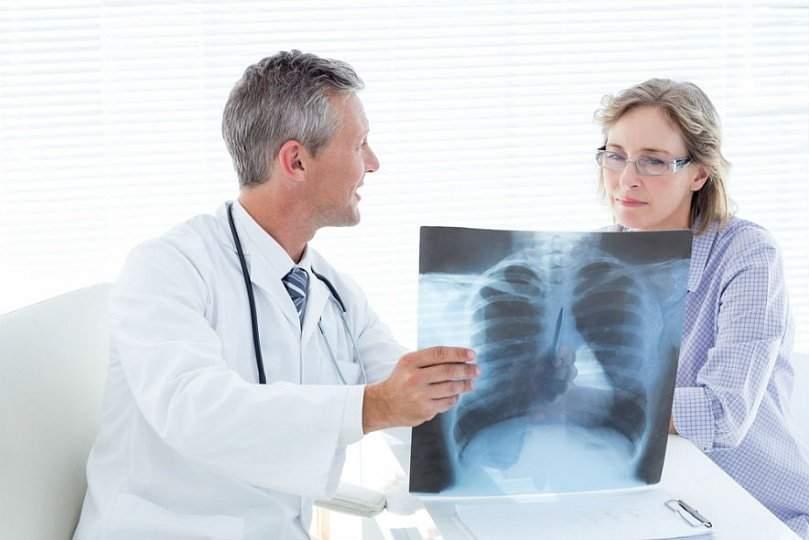Самые распространенные мифы о пневмонии, в которые нельзя верить